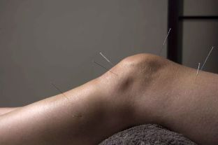Acupuncture encourages repair of joint tissue