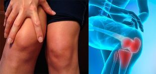 Discomfort and swelling in the knee area are the first symptoms of arthrosis